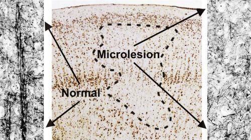 microlesions