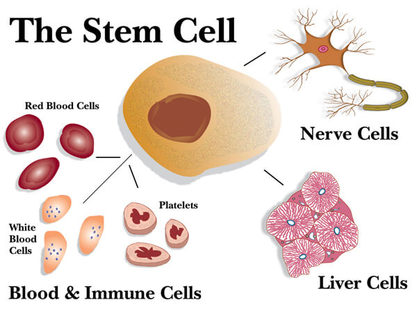 MS: Stem cell transplants more effective than mitoxantrone drug