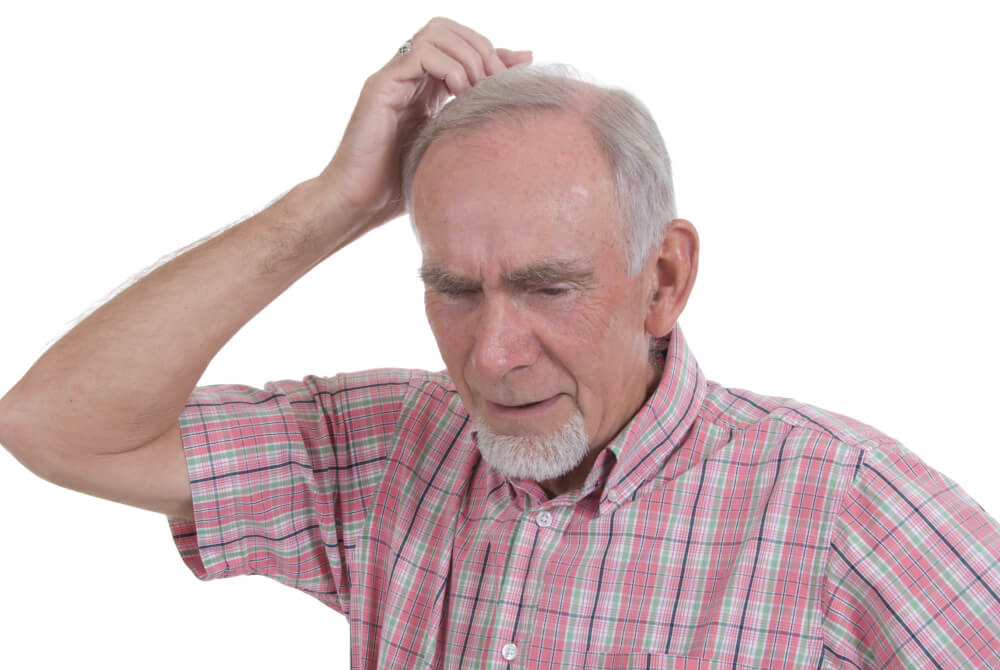 epilepsy term paper