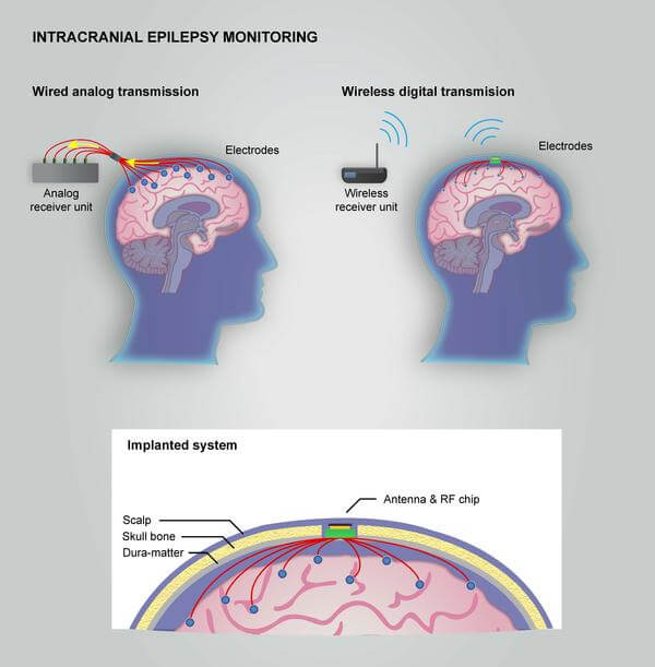 Monitoring epilepsy in the brain with a wireless system