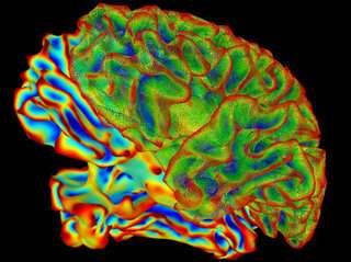 Brain 'Tsunami' May be Hidden Cause of SUDEP