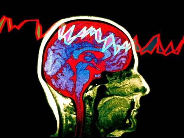 Sudden death in epilepsy: Researchers finger possible cause
