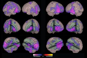 Fig1-epilepsy