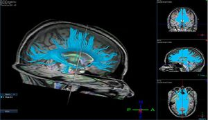diffusion-tensor-imaging-soccer-heading