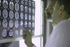 Two doctors look at images of a brain scan. Scans such as these are often used to help determine if a person has epilepsy or is prone to seizures. Currently, Allegheny General Hospital is conducting a study to determine best practices for treating epilepsy in emergency departments.