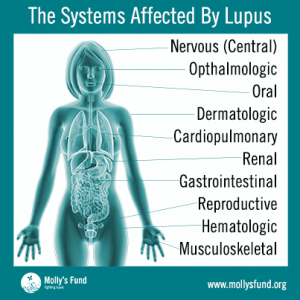 Systems-Affected-by-Lupus-Edit-2-2014-403x403