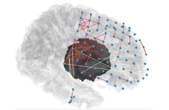 New computational techniques could help researchers pinpoint anatomical source of seizures