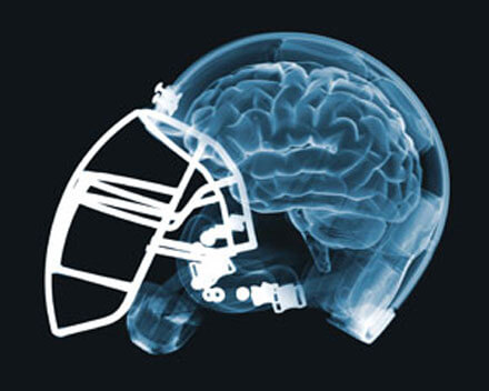 TBI: Athletes may experience long-term brain changes after sports-related concussion