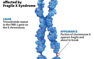 Researchers propose new explanation for symptoms of fragile X syndrome