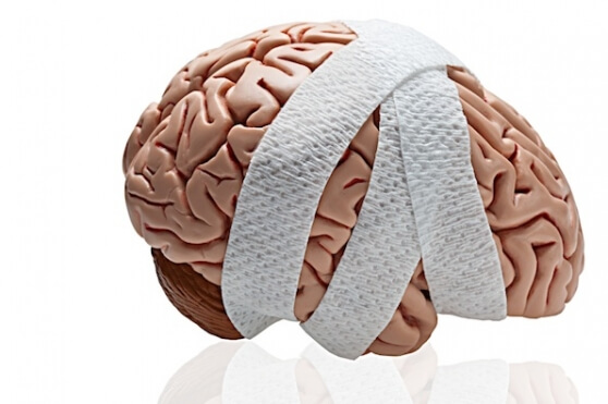 Symptom trends may help predict recovery of patients suffering from post-concussion syndrome