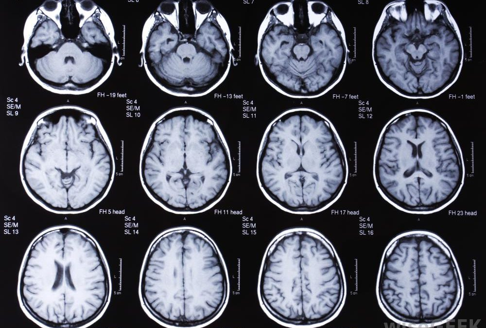 Specific Brain Lesion Linked to Post-Stroke Epilepsy
