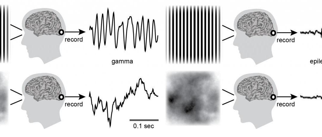 Why some images trigger seizures