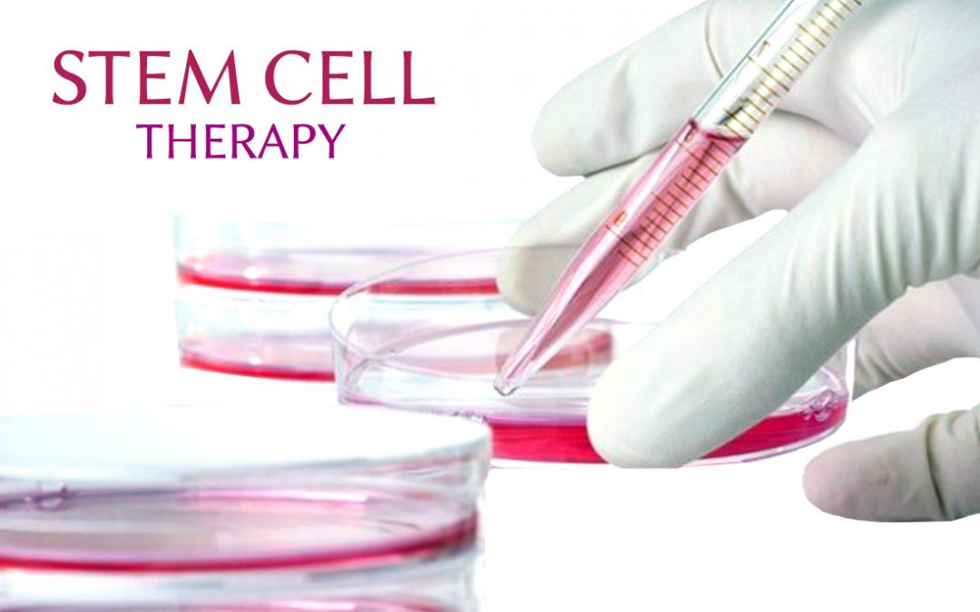 Stem Cell Therapy Shows Potential in Treating Medication-resistant Epilepsy Patients