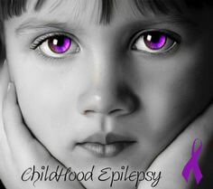 Health & Wellness: Detecting childhood epilepsy — it's not their attention span