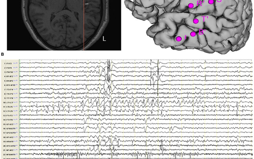 Stereo EEG provides a deep, detailed map of the brain as physicians evaluate patients for the surgical treatment of epilepsy.