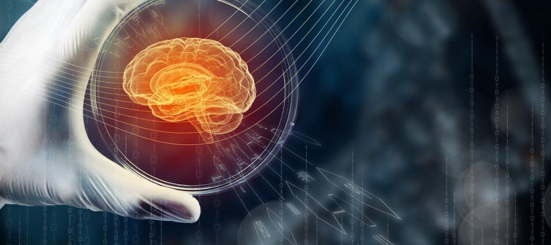 Pairnomix, StemoniX Develop Epilepsy Model in Search for New Anti-seizure Drugs