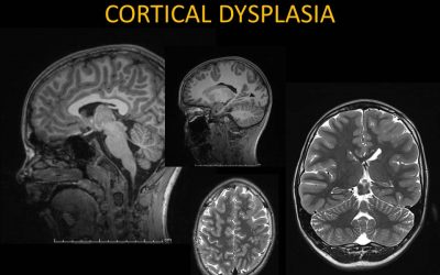What Is Cortical Dysplasia?