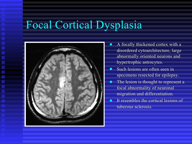 Cytomegalovirus Symptoms What Is Cortical Dyspl...