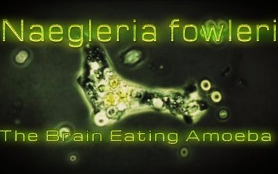 Save a Life – Please Be Aware Water Born Amoeba Causes Seizures and Even Death