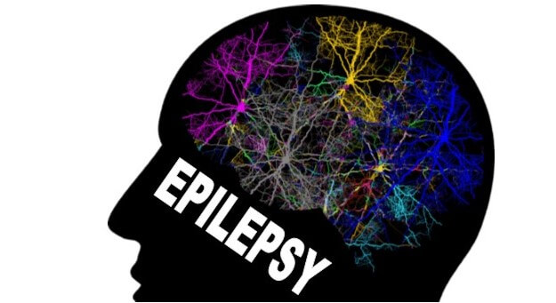 What Modern Day Challenges Affect Epilepsy Treatment?