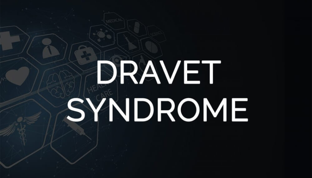 FDA Approves Stiripentol for Dravet Syndrome Seizures