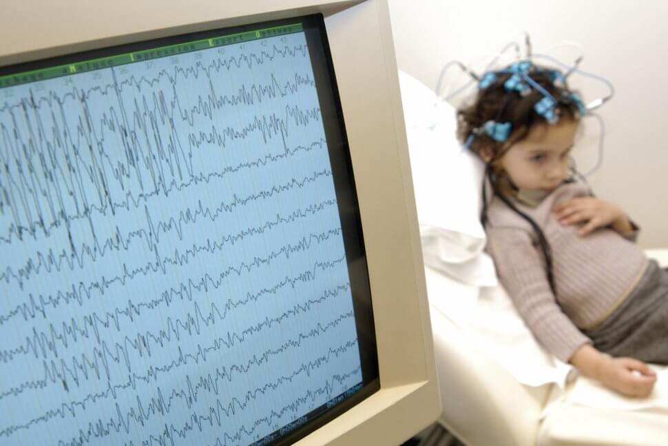 Deep Brain Stimulation May Bring Relief for People With Severe Epilepsy