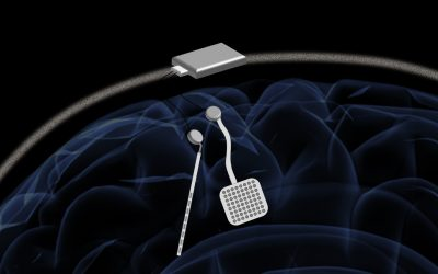 Innovative brain implant could improve Epilepsy and Parkinson's treatment