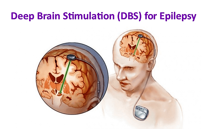 Deep Brain Stimulation (DBS) for medically-refractory epilepsy in the U.S.