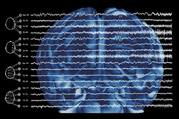 Rapid Seizure Spread Linked to Resective Surgery Failure in Drug-Resistant Epilepsy